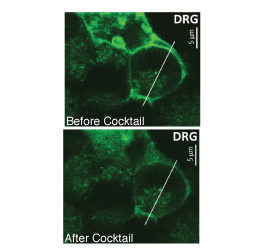 PIP2 biosensor used in new research on the regulation of cold sensitivity in DRG neurons.